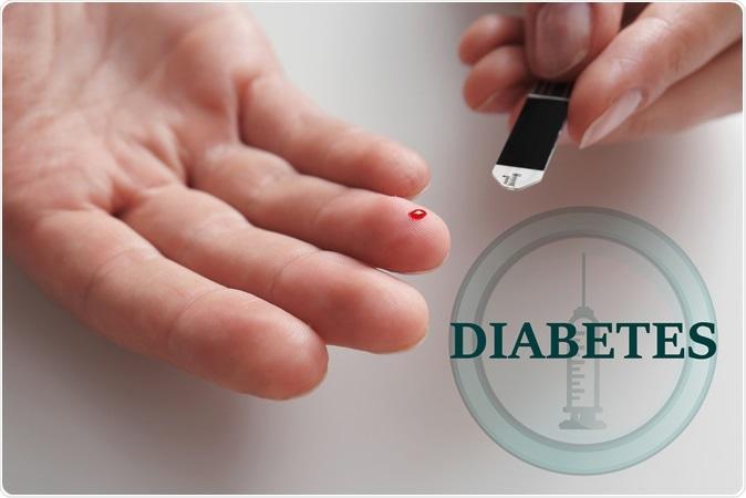 Apothekers gaan mee screenen naar diabetes